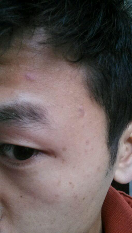 男性银屑病患者护理头部的措施