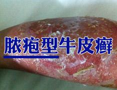 脓疱型银屑病症状形态是怎么表现