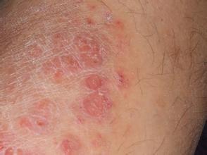 银屑病有诱发因素以及日常护理措施