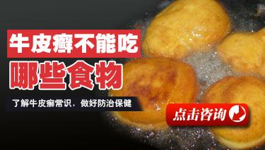 牛皮癣患者能不能吃火锅