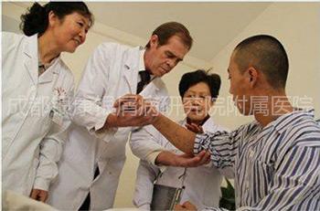 成都牛皮癣治疗医院